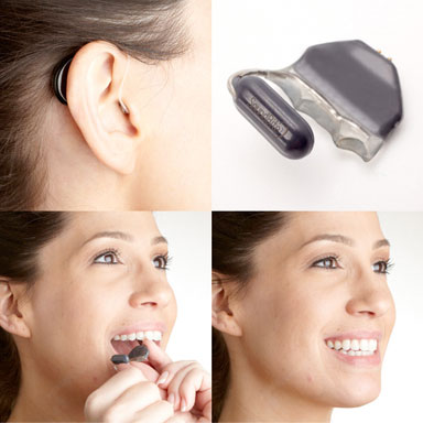 Intra-oral Hearing Aids